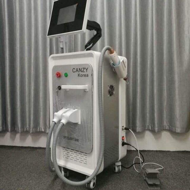 Máy xóa xăm công nghệ laser của Canzy