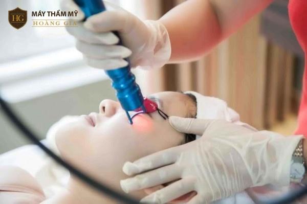 Ưu điểm và hạn chế của trị nám bằng laser